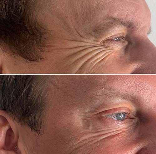 Mens-botox-Hitchin